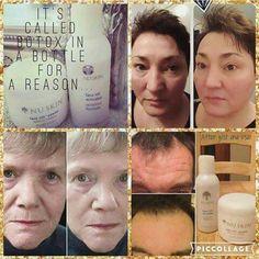 Face lift maszkunk egyedi technikájának köszönhetően azonnal kisimítja a bőr ráncait, hatása akár 1 hétig is eltarthat.