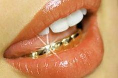 """All gold slugs, no diamonds on it"" Diamond Grillz, Diamond Teeth, Gold Slugs, Girl Grillz, Dental, Tooth Gem, Piercings, Gold Grill, The Coveteur"