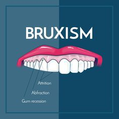 Dentaltown - Bruxism is the involuntary or habitual grinding of the teeth, typically during sleep. Excessive teeth grinding or jaw clenching causes tooth wear and breakage.
