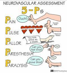 orthopedic fracture mnemonic - Google खोज
