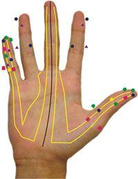Manopuntura: la salud en tus manos