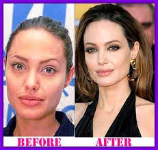 Resultado de imagem para nigella lawson body before and after plastic surgery✿⊱╮