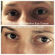Just 1 week and you can already see the difference Rodan + Fields Multi-function Eye Cream can make! Order yours at christyc.myrandf.com! #beautifulskinisin #eyecream #EyeCrack