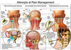 Occipital Neuralgia - attempts at pain management