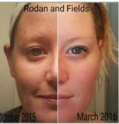 Check out Rachel& results! She has been using Rodan+Fields Unblemish Regimen in the AM and Redefine Regimen with the AMP MD roller in t… Rodan And Fields, Rodan Fields Skin Care, Redefine Regimen, Skin Care Regimen, Love Your Skin, Good Skin, Amp Md Roller, Acne Rosacea, Radiant Skin