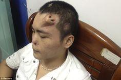 Les chirurgiens ont cultivé un nez sur le front d'un jeune homme!