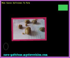 Gallstones Without Gallbladder 154758 - Cure Gallstone | 15251903 ...