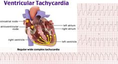 The rhythm seen in the image is a monomorphic ventricular tachycardia. This occurs in most cases due to the presence of scar tissue in the myocardium. The first objective for treating any patient with a wide-complex tachycardia (WCT) is to evaluate for hemodynamic instability (hypotension, chest pain, dyspnea, altered mental status) because any patient with a WCT can deteriorate quickly as the rhythm degenerates into ventricular fibrillation.