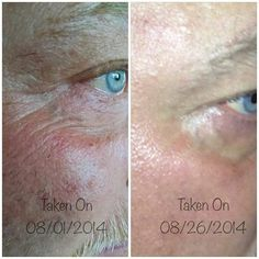 Try one of our newest age reversal products! This is after only 4 weeks of use!