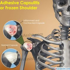 Treatment for adhesive capsulitis or frozen shoulder basically focuses on alleviating pain and trying to preserve as much range of motion as possible in the affected shoulder. Know its causes, symptoms, treatment.