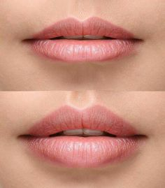 year, the FDA approved the Kybella solution from Kythera Biopharmaceuticals Inc. Since that time, patients have been able to take advantage of this non-surgical approach to facial contouring. Dermal Fillers Lips, Facial Fillers, Botox Fillers, Lip Fillers, Permanent Lipstick, Permanent Makeup, Botox Lips, Hyaluron Filler, Love My Makeup