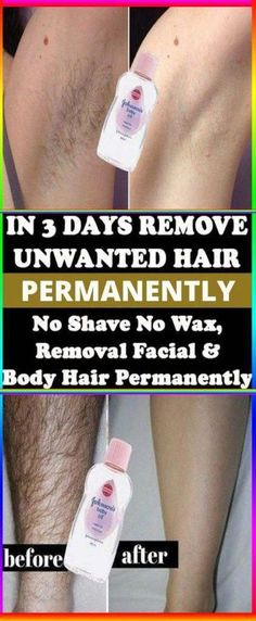 IN 3 DAYS REMOVE UNWANTED HAIR PERMANENTLY, NO SHAVE NO WAX, REMOVAL FACIAL AND BODY HAIR PERMANENTLY #BrazilianHairRemoval #UnwantedFacialHairRemoval #UnwantedHairRemoval #SkinHairRemoval #HairRemovalMachine Permanent Facial Hair Removal, Chin Hair Removal, Upper Lip Hair Removal, Underarm Hair Removal, Electrolysis Hair Removal, Remove Unwanted Facial Hair, Hair Removal For Men, Hair Removal Remedies, Hair Removal Methods