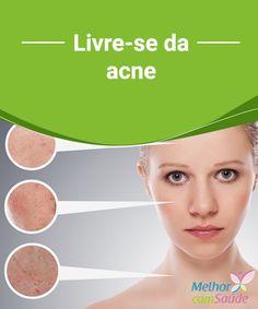 Acne veja como se livrar dela naturalmente A acne, popularmente conhecida como espinha, é uma doença de pele que pode causar a formação de lesões vermelhas inflamadas, de distintos graus e tamanhos.