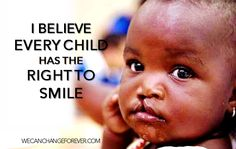 I believe every child has the right to smile.