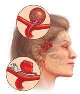 Image from https://jessieponce.files.wordpress.com/2013/03/brain_aneurysms-3-small-1.jpg?w=820.
