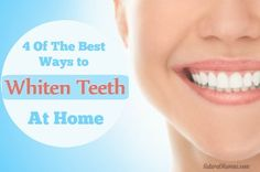 Watch This Video Fantasting All-Natural Home Remedies To Whiten Teeth Ideas. All Time Best All-Natural Home Remedies To Whiten Teeth Ideas. Teeth Whitening Cost, Teeth Whitening Remedies, Natural Teeth Whitening, Everyday Beauty Routine, Beauty Routines, Dental Facts, Teeth Care, White Teeth, Natural Solutions