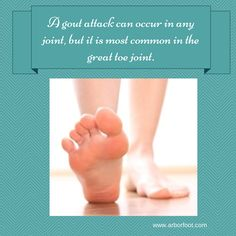 A gout attack can occur in any joint, but it is most common in the great toe joint. #Gout