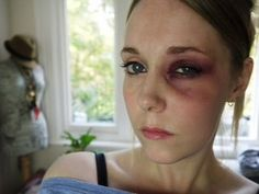 Faire un faux bleu avec du maquillage - DIY - [post_tags Bruises Makeup, Wound Makeup, Scar Makeup, Fake Makeup, Sparkly Makeup, Black Eye Makeup, Diy Makeup, Makeup Ideas, Bruised Eye