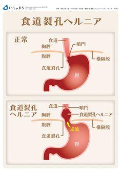 食道裂孔ヘルニアとは #infographics