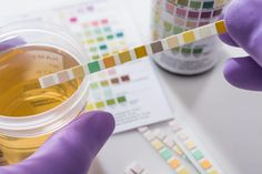 'I've gained my life back': New tests may help those with persistent urinary tract infections - hallo. Kidney Infection, Urinary Tract Infection, White Blood Cell Count, Bacterial Diseases, Funny Test, Interstitial Cystitis, Small Study, Making Excuses, Dna Test