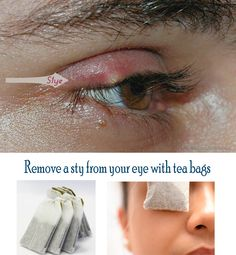 How To Treat An Eye Stye -  Amazing Herbal Remedies For Stye
