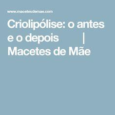 Criolipólise: o antes e o depois   Macetes de Mãe