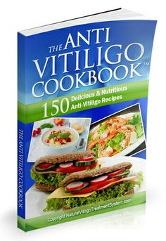 Book International: Anti-Vitiligo Cookbook AND Beat Depression: Sel. My Cookbook, Cookbook Recipes, Vitiligo Diet, Create A Recipe, Honey And Cinnamon, Natural Treatments, Diet Tips, Vegetarian Recipes, Kochen