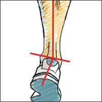 Supination, Explained-If you notice excessive wear on the outside of your shoes, you may be guilty of supination.