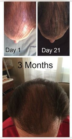 MONAT products are helping men and women get their hair back! See some impressive before and after pics and testimonials.