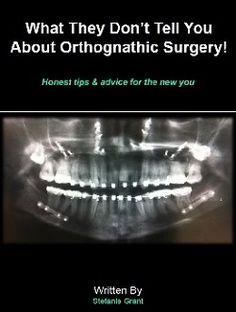 Orthognathic Surgery eBook