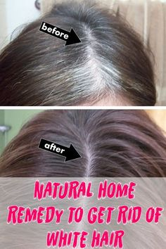 natural home remedy to get rid of white hair