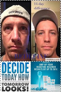 Rodan + Fields Redefine Regimen is for the appearance of lines, pores and loss of firmness. All of our products have a 60 day money back guarantee. Message me on pinterest @ R+Fskincare101 for more info.