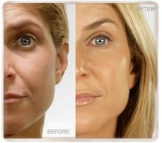 Look younger, healthier and more radiant. With an exclusive, patent-pending growth factor complex derived from adult stem cells, our cellular rejuvenation serum gently diminishes the appearance of fine lines and wrinkles. Serum, Growth Factor, Acne Skin, Look Younger, Stem Cells, Anti Aging Skin Care, Glowing Skin, Good Skin, Patent Pending