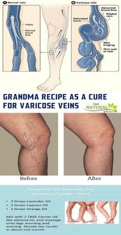 Remedies For Varicose Veins Trans fats and refined sugar are harmful for the blood vessels and a big factor Varicose Vein Removal, Varicose Vein Remedy, Varicose Veins, Essential Oils For Skin, Young Living Essential Oils, Essential Oil Blends, Young Living Oils, Health And Beauty Tips, Blood Vessels