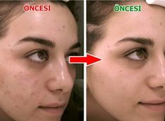 Elimina le macchie faccia in 4 minuti - Elimina le macchie faccia in 4 minuti Informations About 4 Dakikada Yüzdeki Lekeleri Yok Et Pin You - Gesicht Mapping, Back Acne Treatment, Face Mapping, Acne Causes, Acne Face Mask, Body Organs, How To Get Rid Of Acne, Decir No, Shampoos