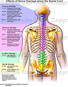 Effects of Nerve Damage along the Spinal Cord. The Merck Manual of Medical Information USA Today. Muscle Anatomy, Body Anatomy, Cervical Spinal Stenosis, Spine Health, Human Anatomy And Physiology, Medical Anatomy, Spinal Cord Injury, Medical Information, Massage Therapy