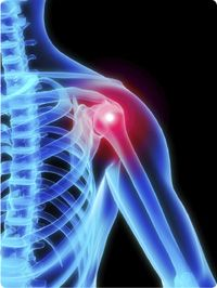 Inflammation of the shoulder or joints