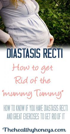 How to Know if You Have Diastis Recti and What to Do About It - The Healthy Honeys