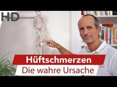 Hüftschmerzen // Die wahre Ursache Arthrose oder Ischialgie ?