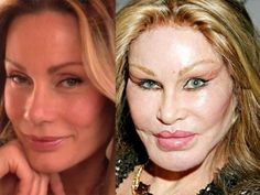Jocelyn Wildenstein This New York socialite went very, very far with plastic surgery. It truly is frightening to even look at her face now. Bad Celebrity Plastic Surgery, Botched Plastic Surgery, Celebrity Surgery, Bad Plastic Surgeries, Worst Celebrities, Celebs, Cheek Implants, Hair Transplant Women, Messages