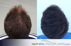 Hair Implants   Hair Transplant Before and After