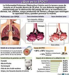 La Enfermedad Pulmonar Obstructiva Crónica o EPOC, es una de las enfermedades más comunes de los pulmones que causa dificultad para respirar. Hay dos formas principales de EPOC: