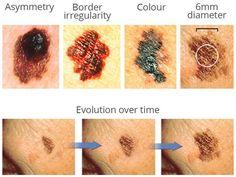 Facial moles and cancer