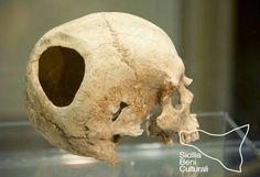 Cranio trapanato - Museo archeologico della preistoria della Valle del Belice