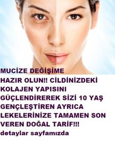 A natural mask that removes blemishes that rejuvenate the skin- Cildi gençleştiren lekeleri yok eden doğal maske A natural mask that removes blemishes that rejuvenate the skin - Beauty Care, Beauty Skin, Health And Beauty, Blemish Remover, Eye Makeup Remover, Skincare Blog, Natural Health Tips, Hair Serum, Healthy Skin Care