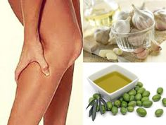 5 Remedies: To Help You Fight Varicose Veins
