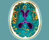 """The Daily Express says a """"breakthrough"""" new test for Alzheimer's could """"pave the way to early diagnosis years before the devastating symptoms appear"""". Alzheimer Test, Alzheimers, Dementia Types, Alzheimer's Prevention, Aphasia, Brain Health, Chronic Illness, Truths, The Help"""