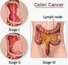 Some Answers To Colon Cancer Questions ~ Remedies Park