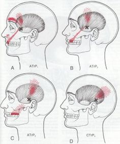 Travell_temporalis trigger point
