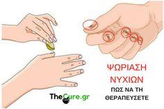 Πως να θεραπεύσετε την ψωρίαση στα νύχια με φυσικό τρόπο. #Υγεία